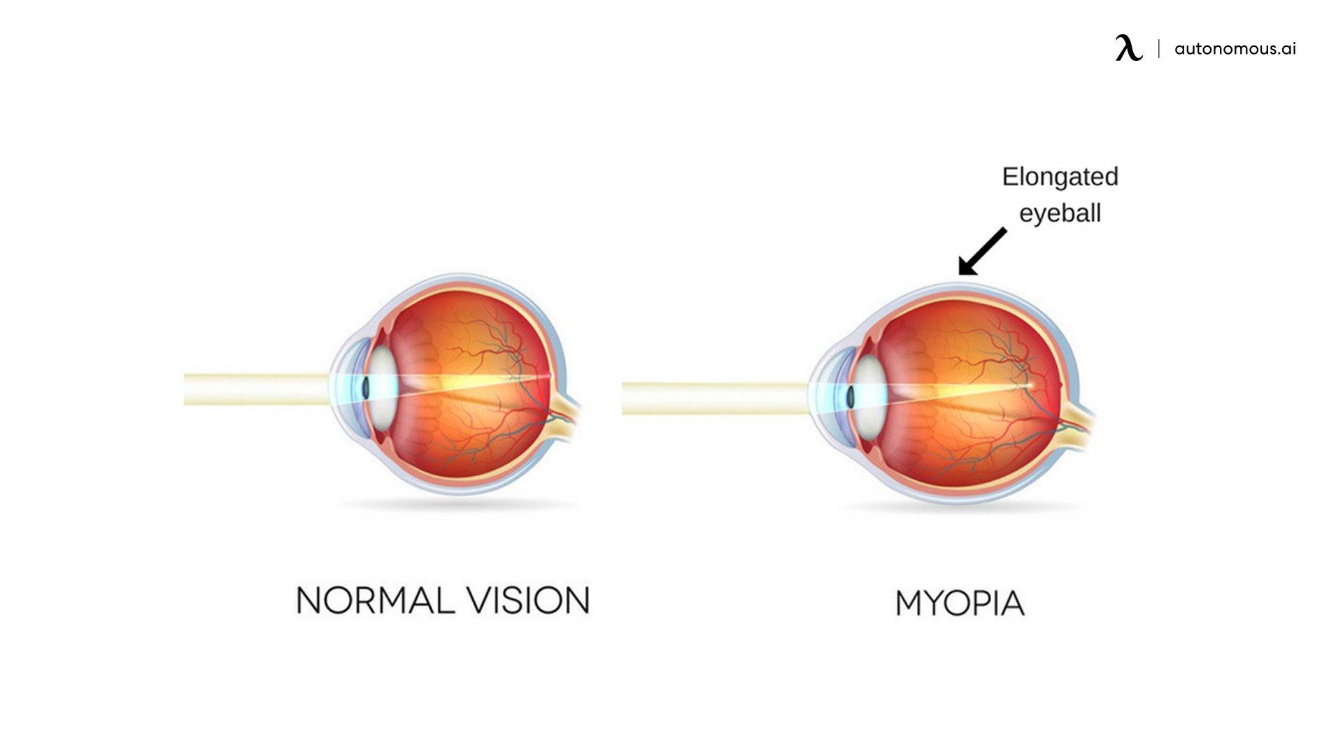 what is Myopia