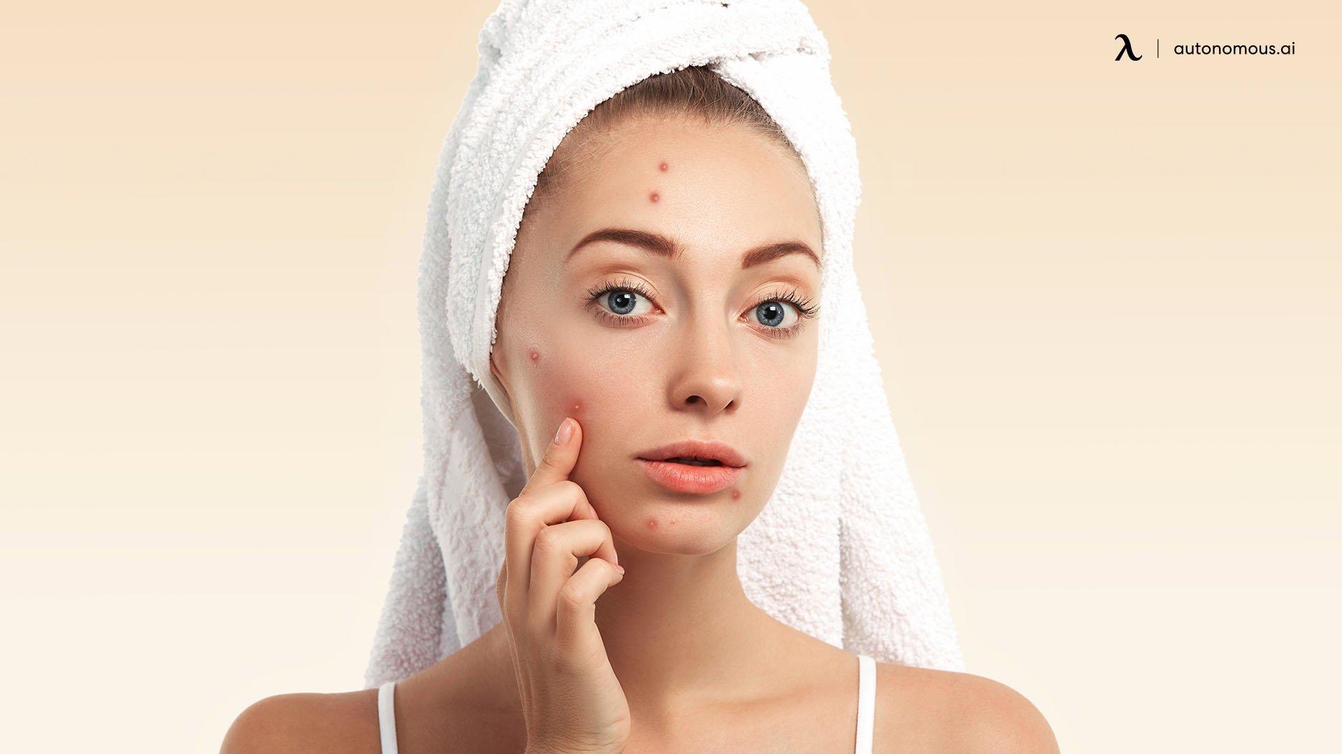 Dry or acne-prone skin.jpg
