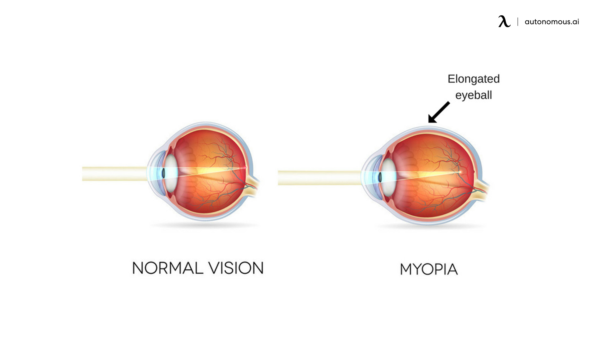 what causes of near-sightedness